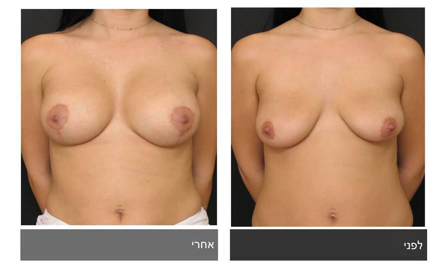 תיקון חזה לא סימטרי תמונות לפני ואחרי 3