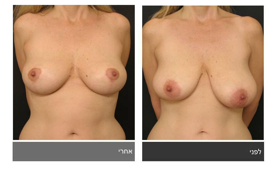 לפני ואחרי תיקון חזה לא סימטרי
