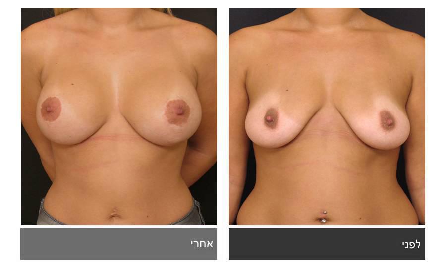 תיקון חזה לא סימטרי תמונות לפני ואחרי 5