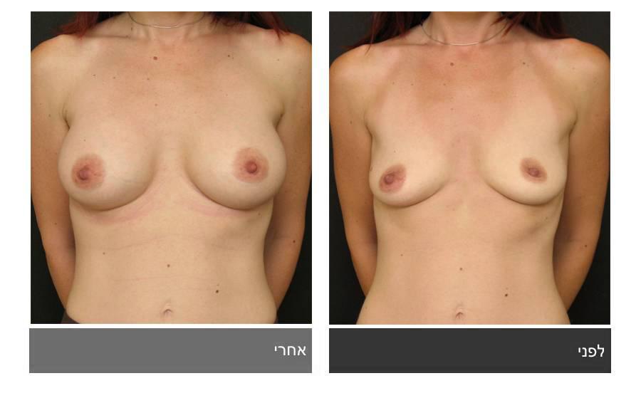 תיקון חזה לא סימטרי תמונות לפני ואחרי 6