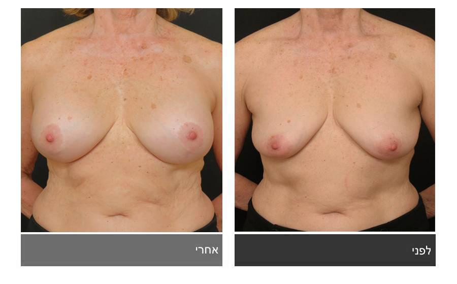 תיקון חזה לא סימטרי תמונות לפני ואחרי 7