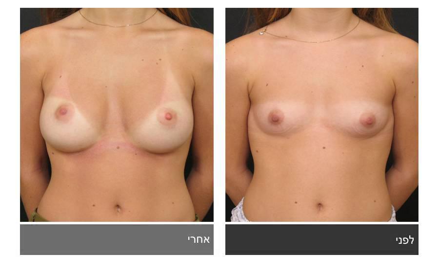 תיקון חזה לא סימטרי תמונות לפני ואחרי 8