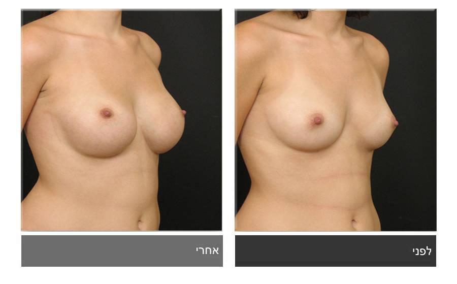 הגדלת חזה לפני ואחרי 1
