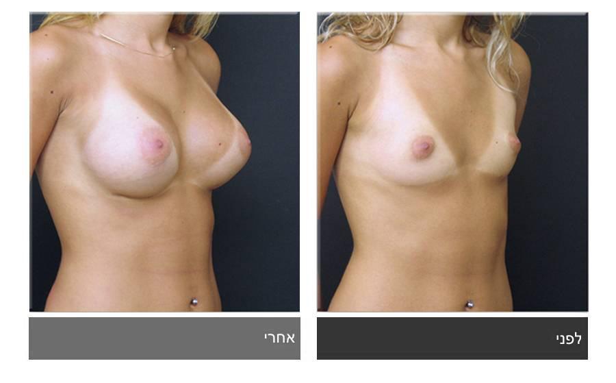 הגדלת חזה לפני ואחרי 12