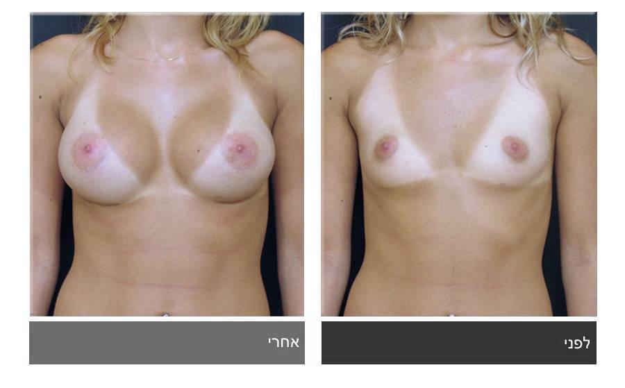 הגדלת חזה לפני ואחרי 13