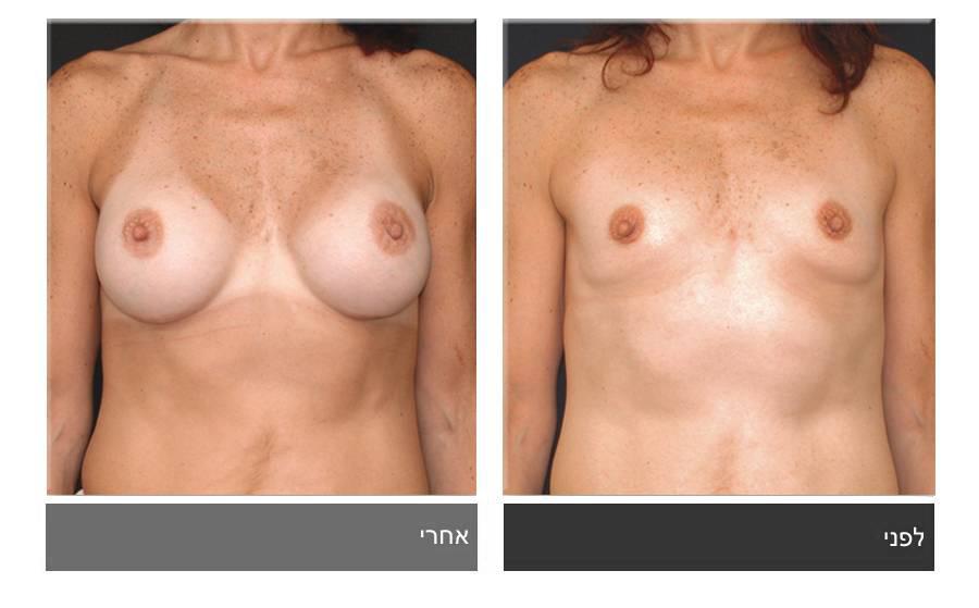 הגדלת חזה לפני ואחרי 14