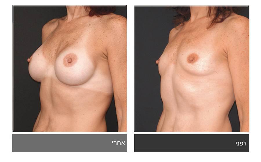 הגדלת חזה לפני ואחרי 15