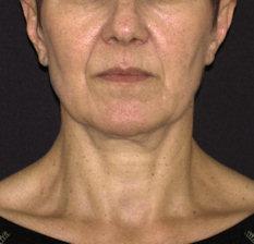 לפני ניתוח מתיחת פנים