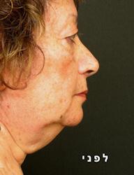 לפני ואחרי ניתוח מתיחת פנים