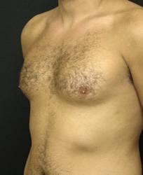ניתוח גניקומסטיה לפני