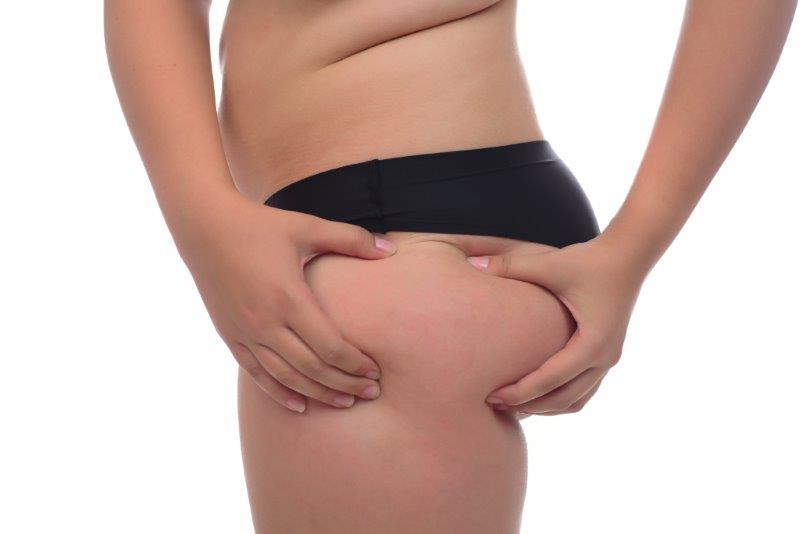 האם ניתן להשמין לאחר ניתוח שאיבת שומן
