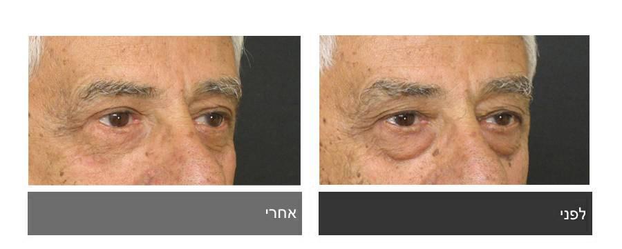 גלריית תמונות לפני ואחרי - ניתוח עפעפיים 1
