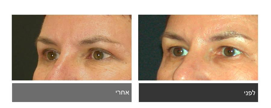 גלריית תמונות לפני ואחרי - ניתוח עפעפיים 12