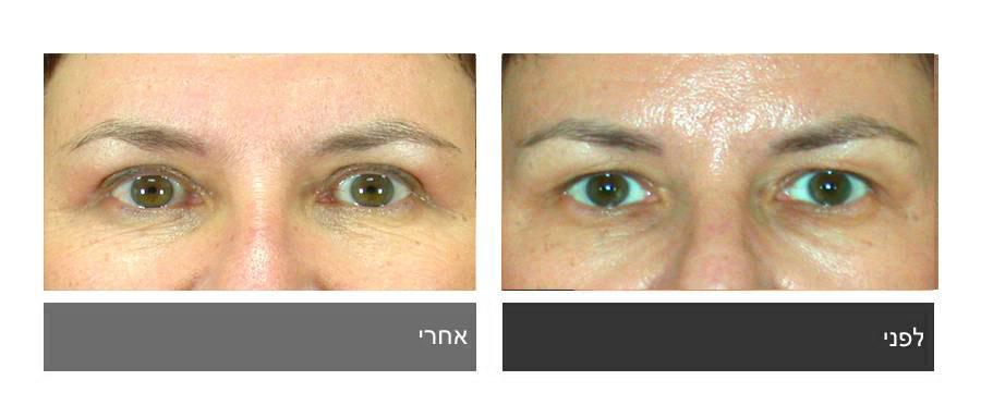 גלריית תמונות לפני ואחרי - ניתוח עפעפיים 13