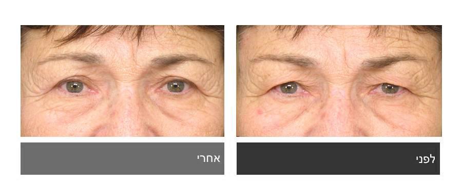 גלריית תמונות לפני ואחרי - ניתוח עפעפיים 14