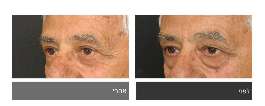 גלריית תמונות לפני ואחרי - ניתוח עפעפיים 2