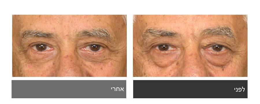 לפני ואחרי ניתוח עפעפיים