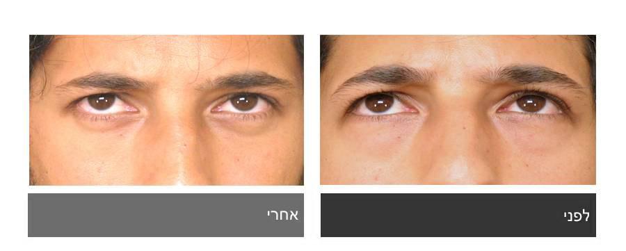 גלריית תמונות לפני ואחרי - ניתוח עפעפיים 4