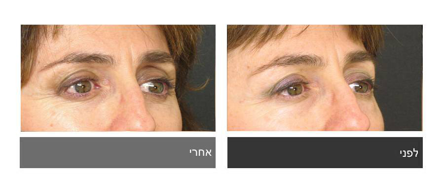 גלריית תמונות לפני ואחרי - ניתוח עפעפיים 5