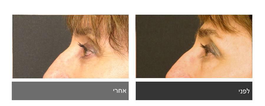 גלריית תמונות לפני ואחרי - ניתוח עפעפיים 6