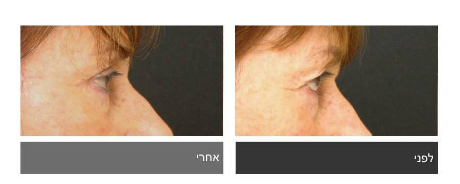 גלריית תמונות לפני ואחרי - ניתוח עפעפיים 7