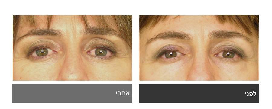 גלריית תמונות לפני ואחרי - ניתוח עפעפיים 8