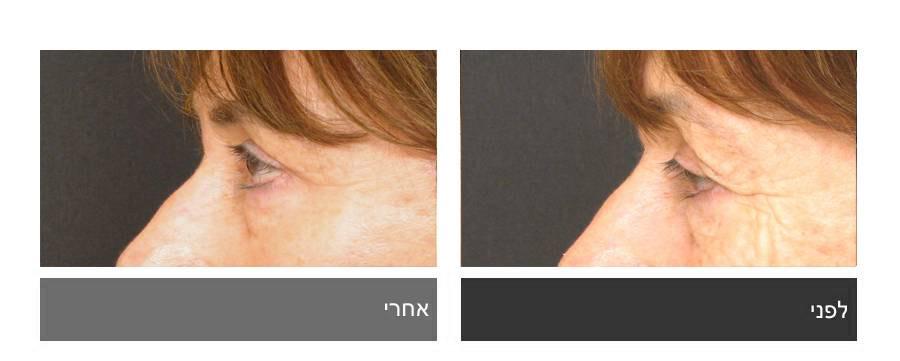 גלריית תמונות לפני ואחרי - ניתוח עפעפיים 9