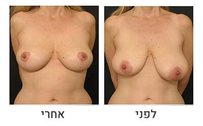 ניתוח חזה לא סימטרי