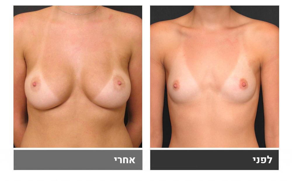 תמונת לפני ואחרי - הגדלת חזה לאחר לידה