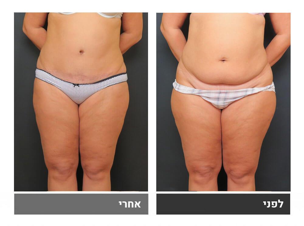 מתיחת בטן מלאה ושאיבת שומן - לפני ואחרי 1