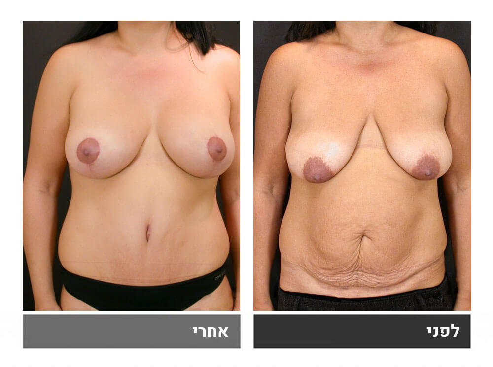 מאמי מייקאובר - מתיחת בטן גדולה שאיבת שומן הרמה והגדלת חזה