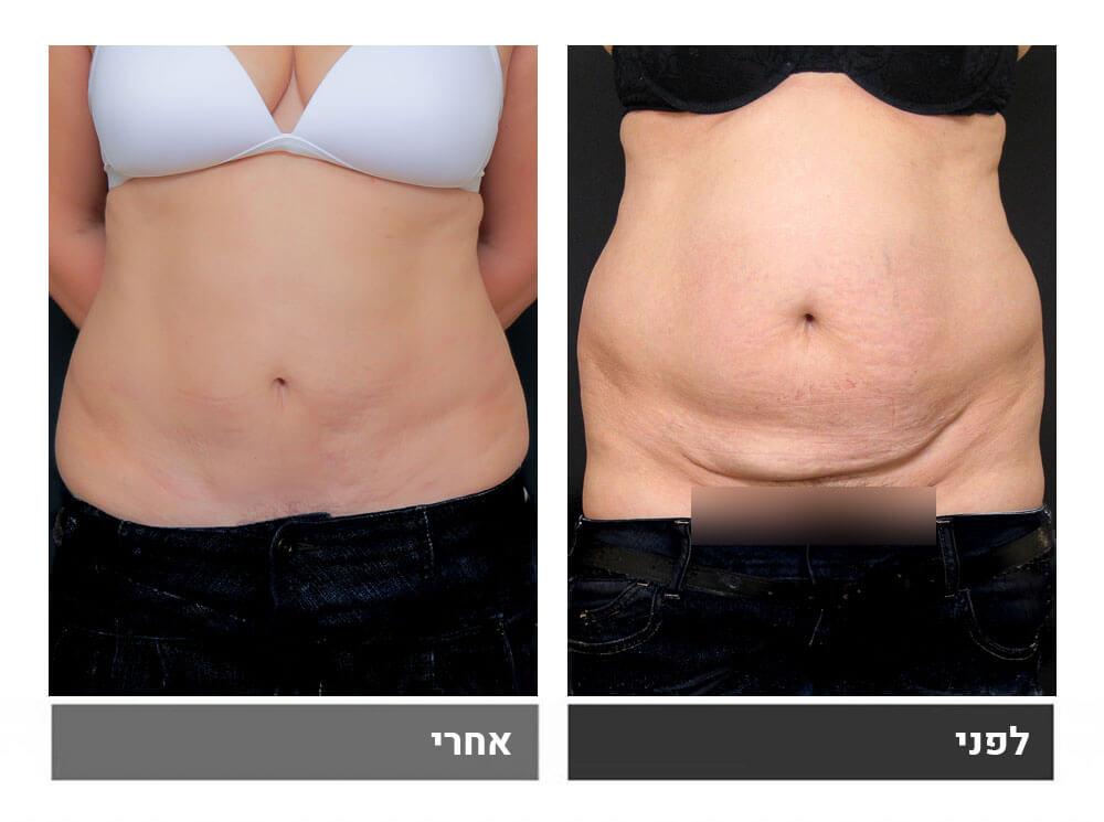 מתיחת בטן קטנה ושאיבת שומן - לפני ואחרי 1