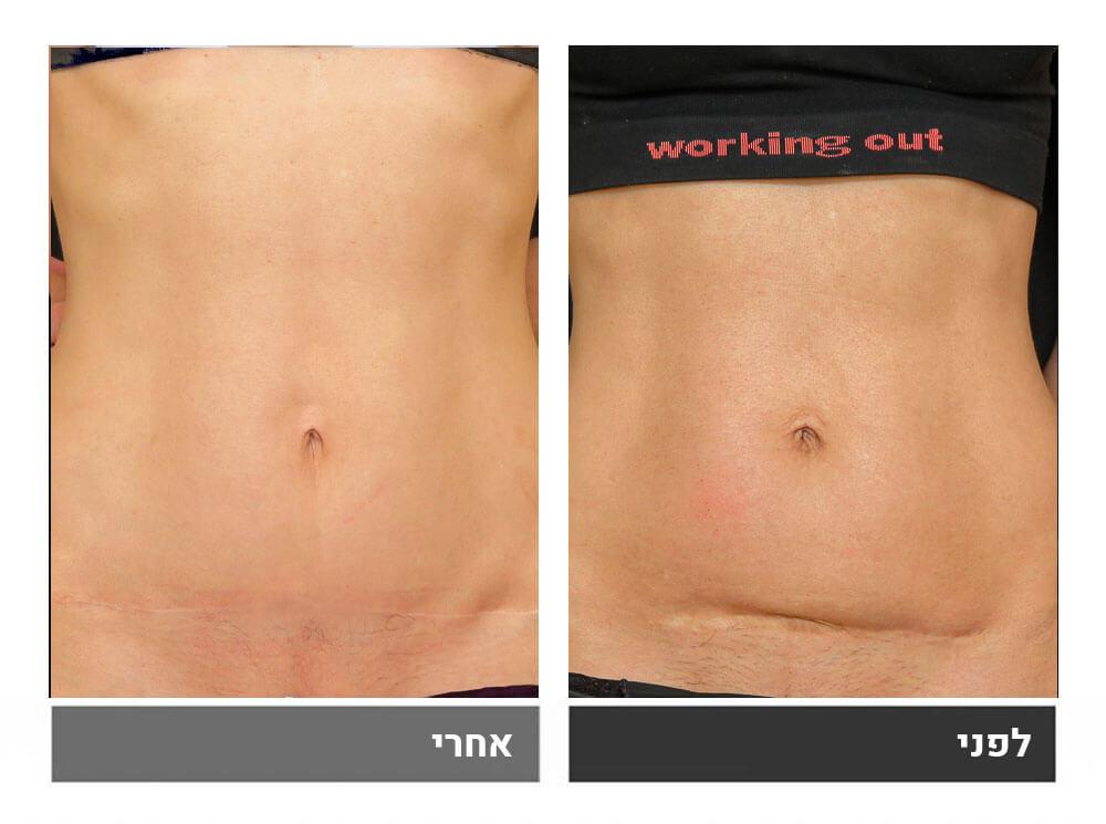 מתיחת בטן קטנה ושאיבת שומן - לפני ואחרי 3