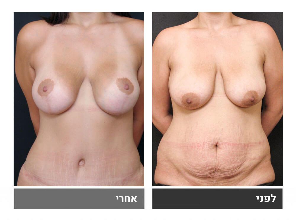 מתיחת בטן גדולה שאיבת שומן הרמה והגדלת חזה - לפני ואחרי 1