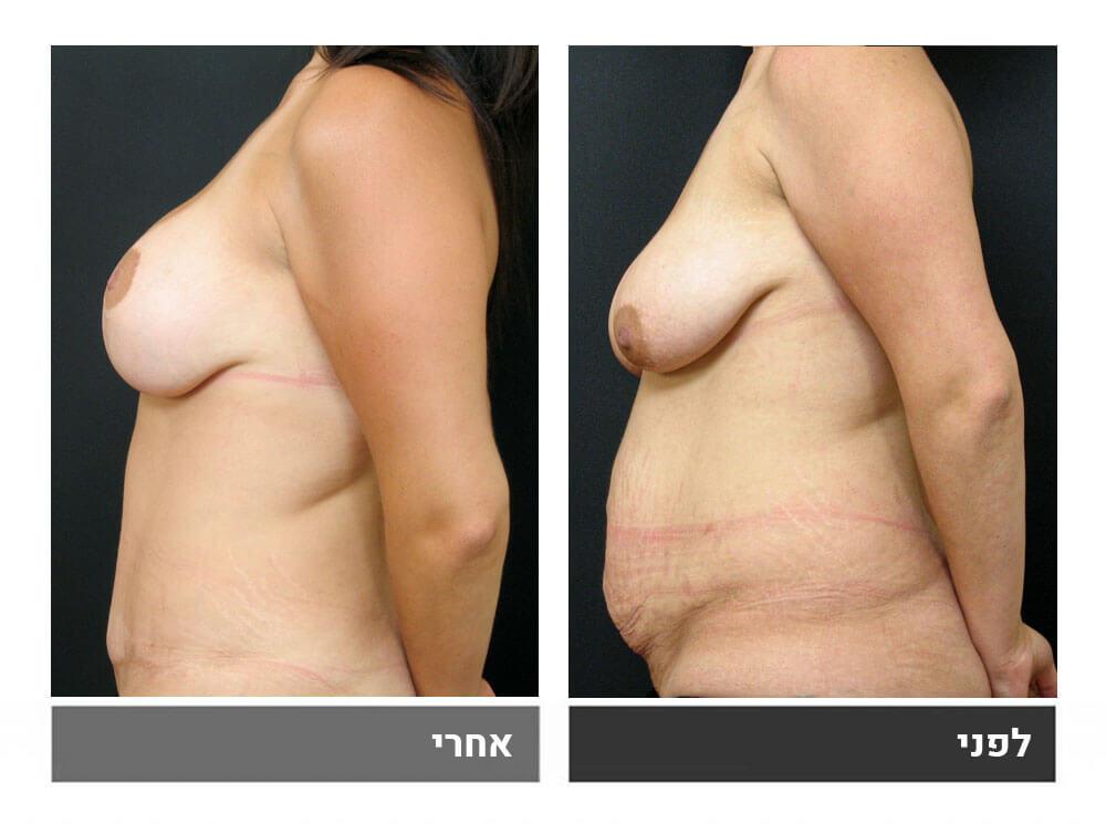 מתיחת בטן גדולה שאיבת שומן הרמה והגדלת חזה - לפני ואחרי 2