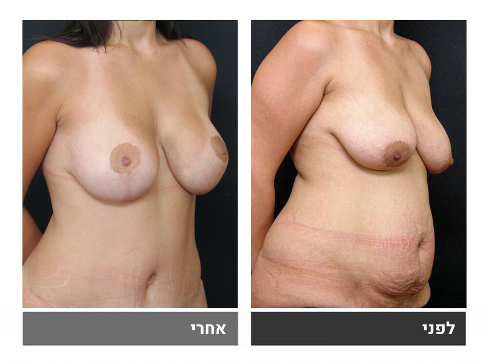 מתיחת בטן גדולה שאיבת שומן הרמה והגדלת חזה - לפני ואחרי 3