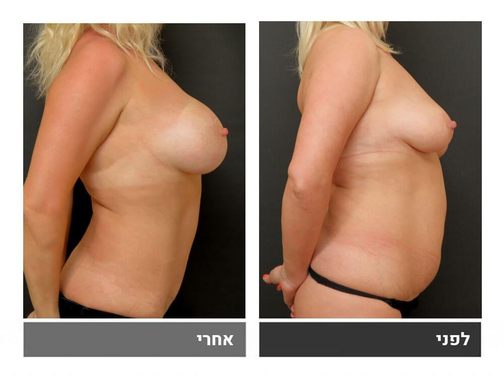 מתיחת בטן גדולה שאיבת שומן הרמה והגדלת חזה - לפני ואחרי 4