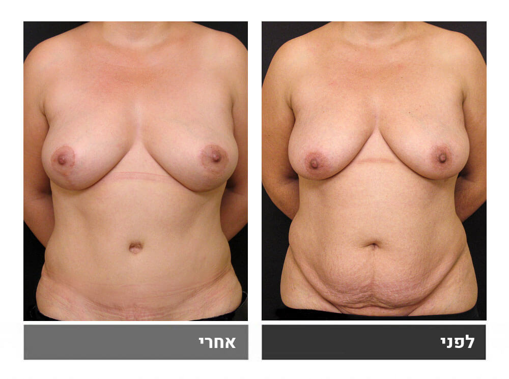 מתיחת בטן גדולה שאיבת שומן והרמה- לפני ואחרי 1