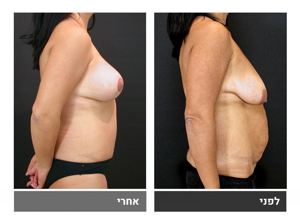 מתיחת בטן גדולה שאיבת שומן הרמה והגדלת חזה - לפני ואחרי 6