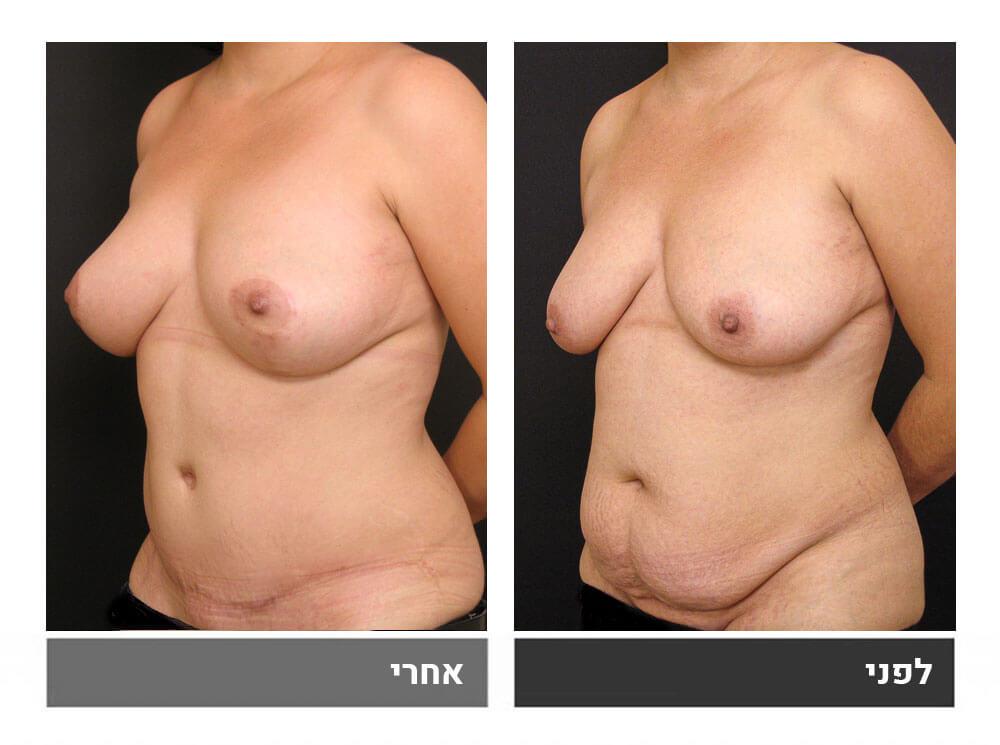 מתיחת בטן גדולה שאיבת שומן והרמה- לפני ואחרי 2