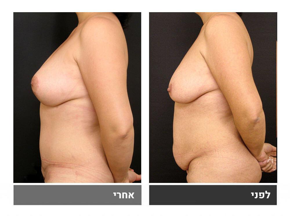 מתיחת בטן גדולה שאיבת שומן והרמה- לפני ואחרי 3