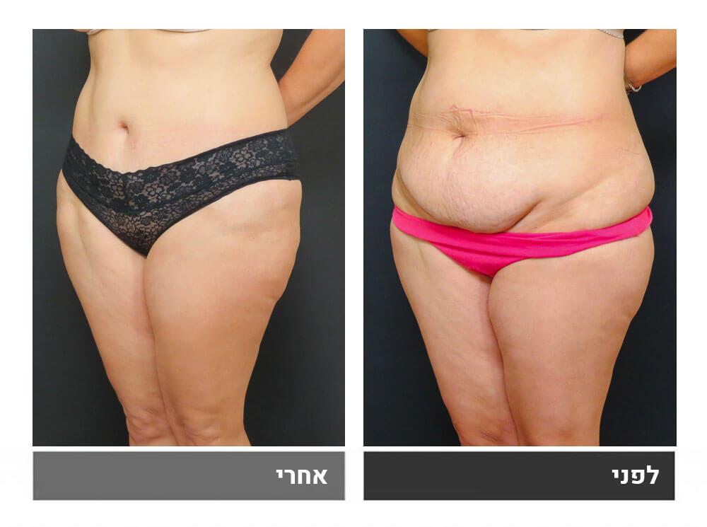 מתיחת בטן מלאה ושאיבת שומן - לפני ואחרי 4