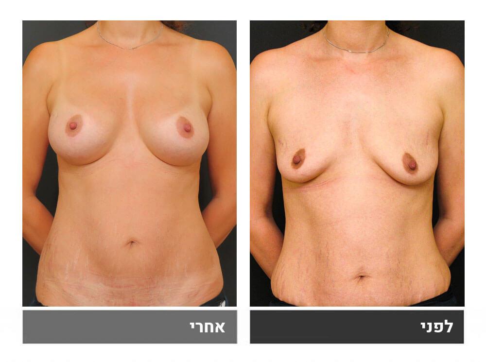 מתיחת בטן קטנה והגדלת חזה - לפני ואחרי 1