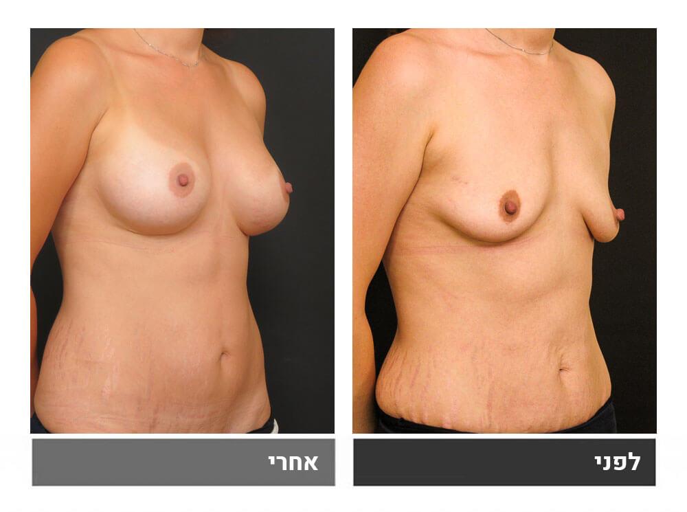 מתיחת בטן קטנה והגדלת חזה - לפני ואחרי 2
