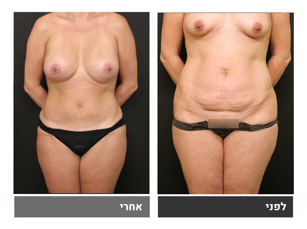 מתיחת בטן קטנה, שאיבת שומן והגדלת חזה - לפני ואחרי 1