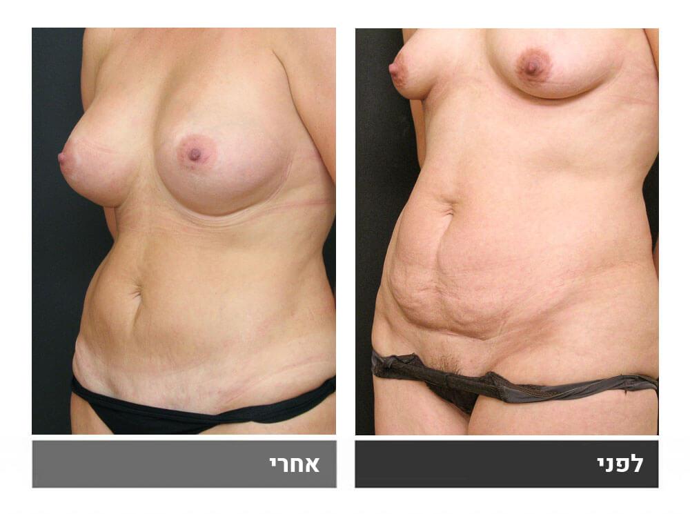 מתיחת בטן קטנה, שאיבת שומן והגדלת חזה - לפני ואחרי 2