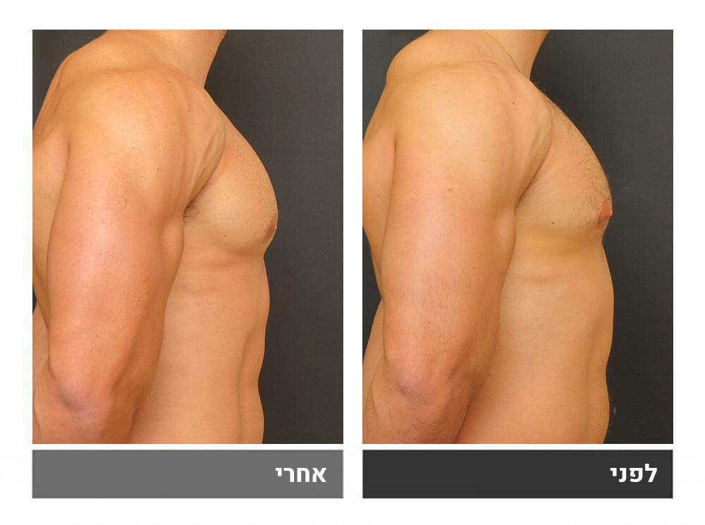 גינקומסטיה אצל מפתחי שרירים - 6