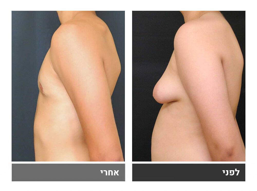 גינקומסטיה עם הסרת עודפי עור בשלב שני - 3