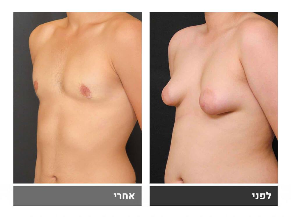 גינקומסטיה עם הסרת עודפי עור בשלב שני - 4